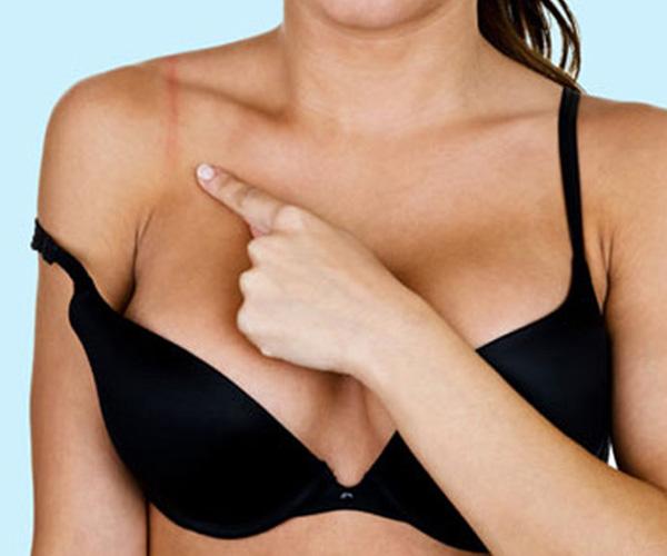 10 dấu hiệu cảnh báo bạn cần thay áo ngực mới
